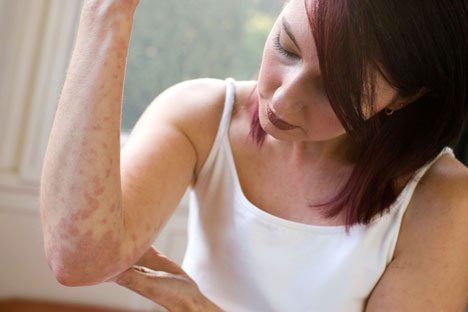 How to Diagnose Eczema