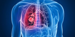 How to Treat Bronchiectasis