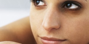 Dark Circles under Your Eyes, Causes, Tips and Treatments