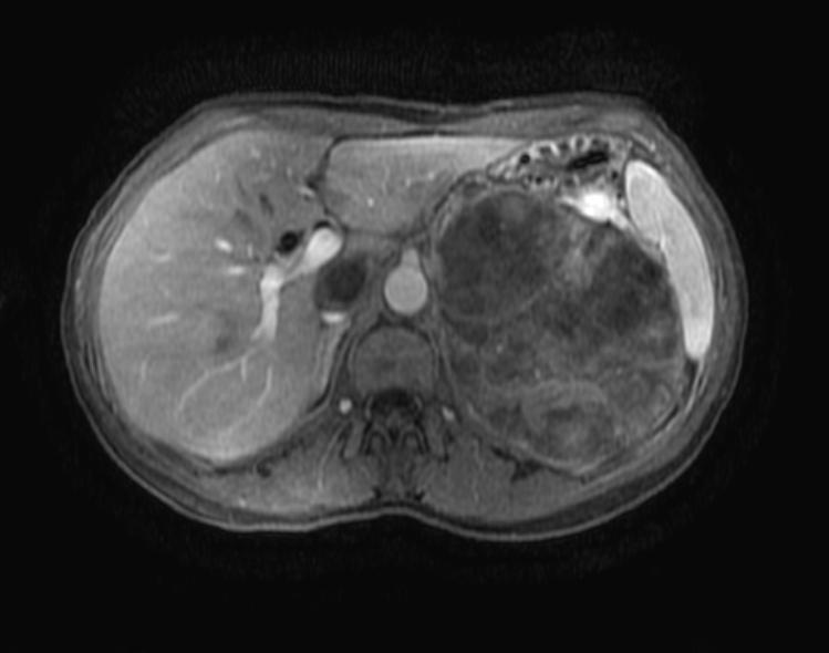 Adrenal Cortical Carcinoma