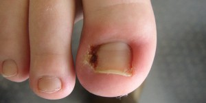 All You Need to Know About Ingrown Toenails
